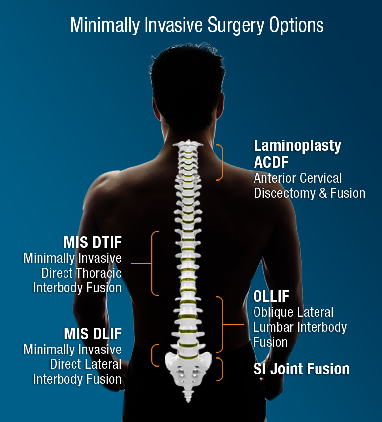 Inspired Spine Minimally Invasive Spinal Surgery options
