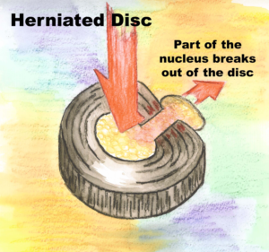 herniated disc example